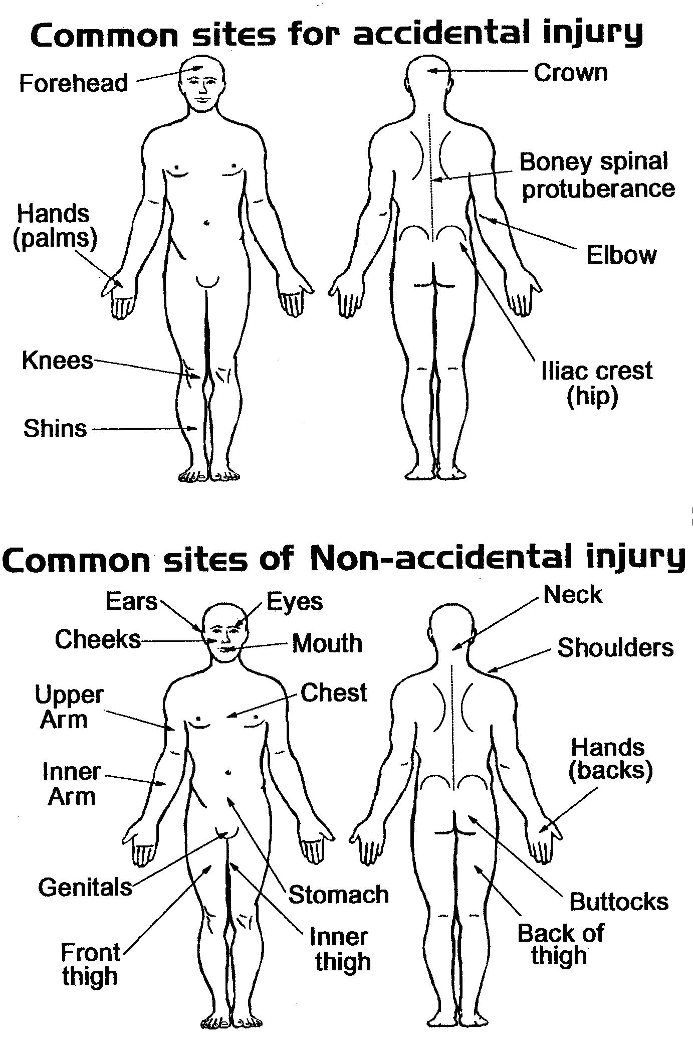 Body Diagrams For Charting Injury ImageResizerTool Com